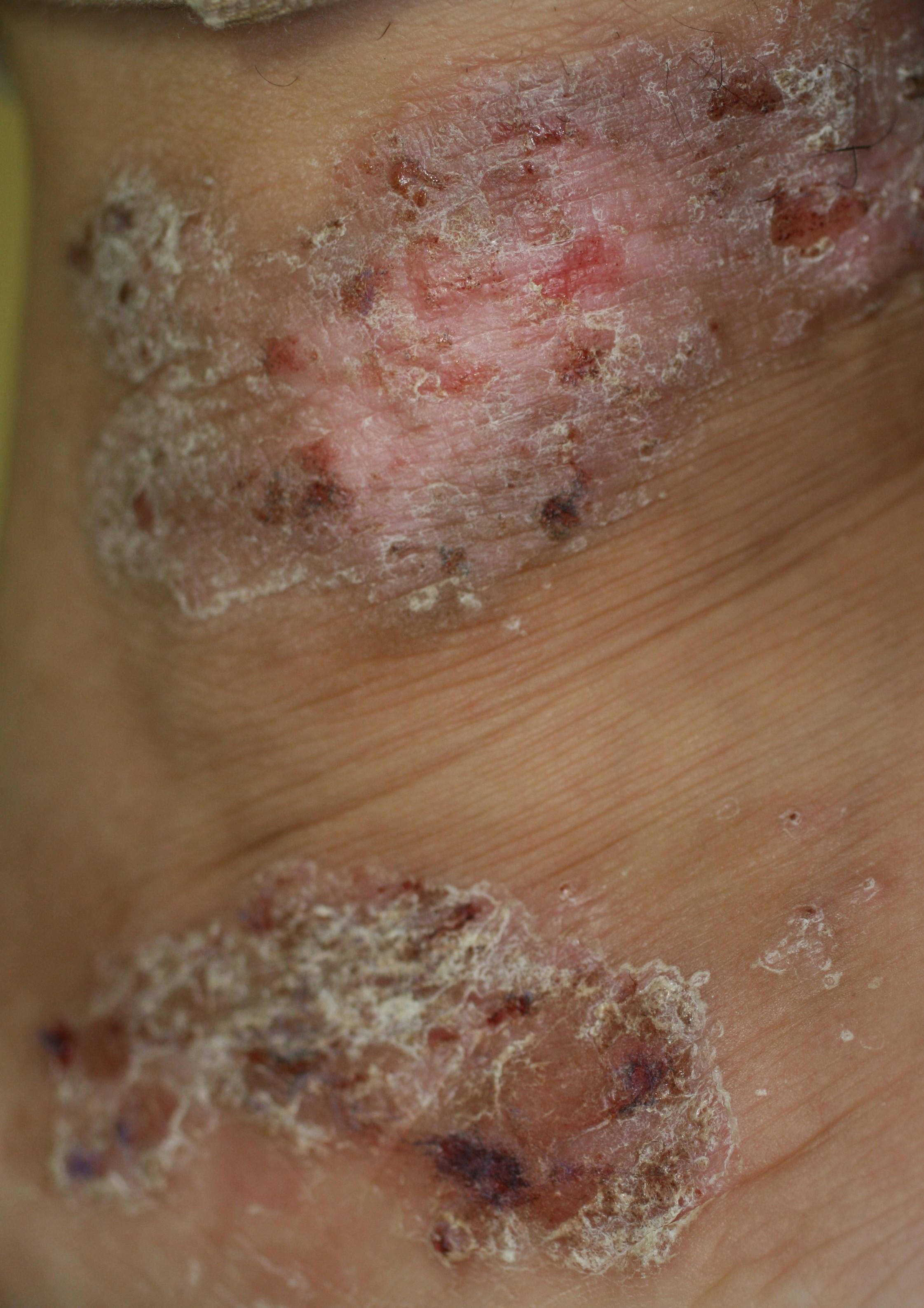 性 炎 アトピー 皮膚