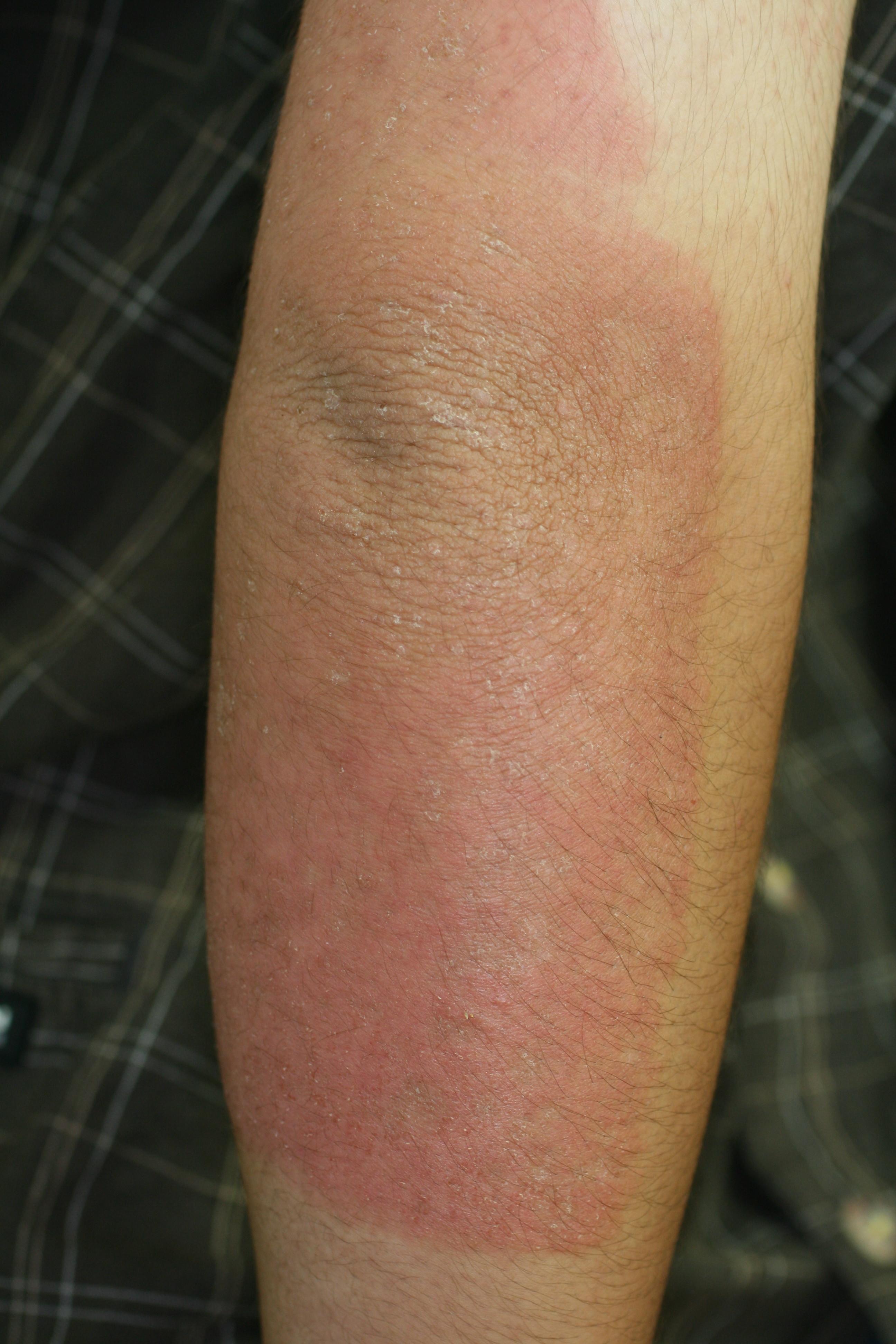 接触皮膚炎