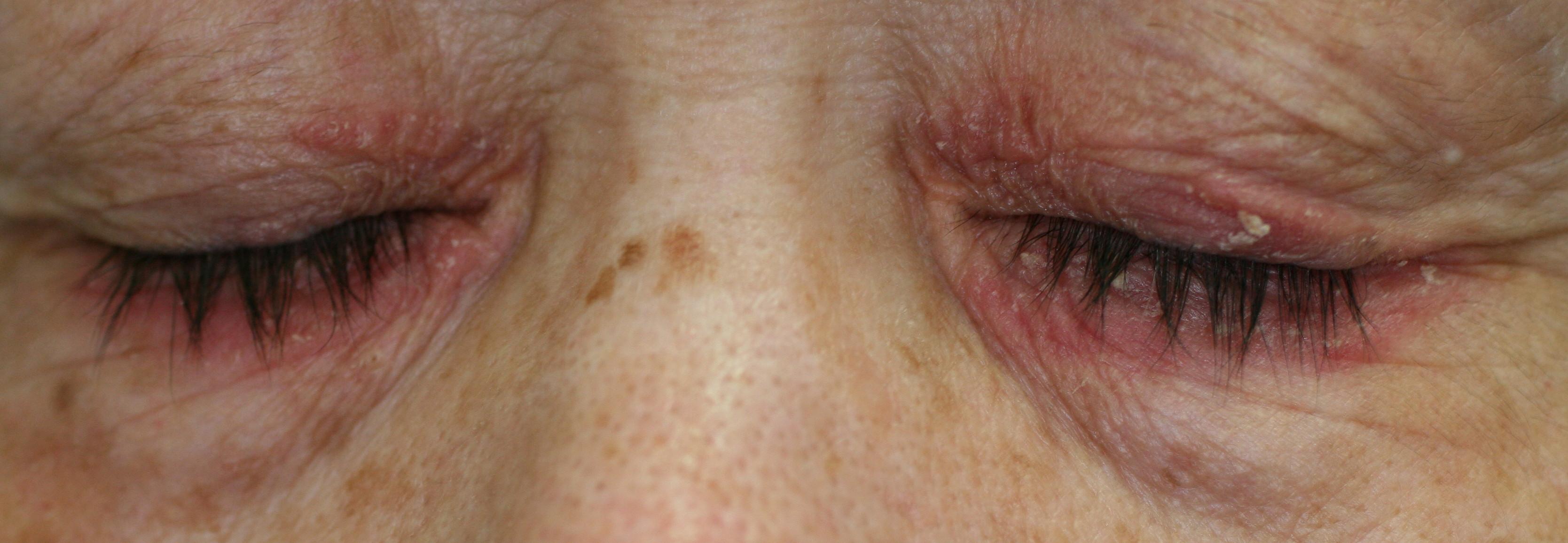赤く アレルギー なる 顔